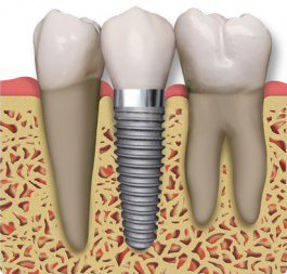 Allan S. Thomas DMD provides excellent dental implants to Sandy, UT.