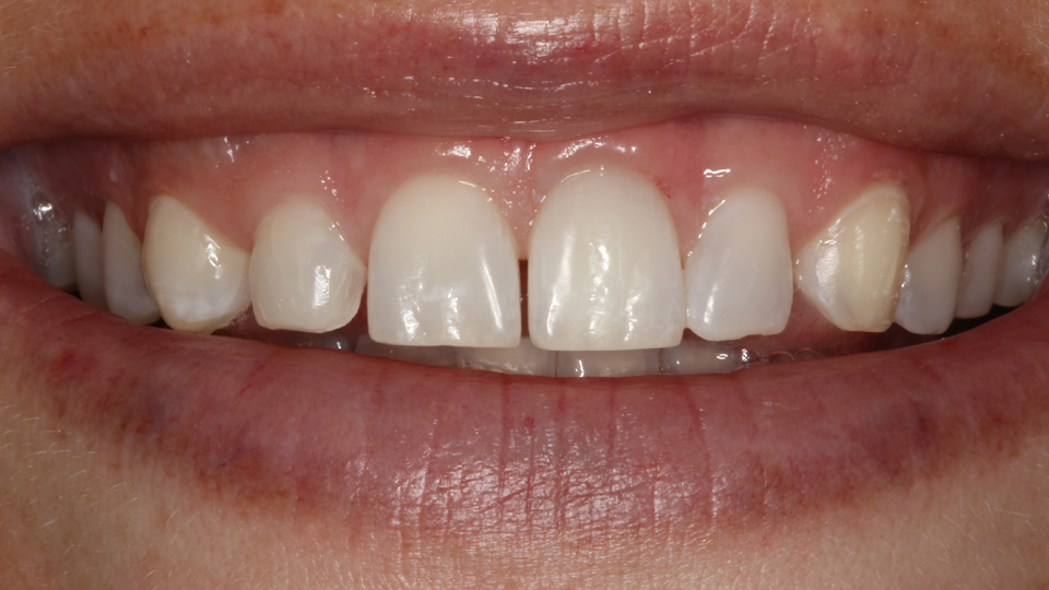 Cosmetic dentistry can give you a new smile.