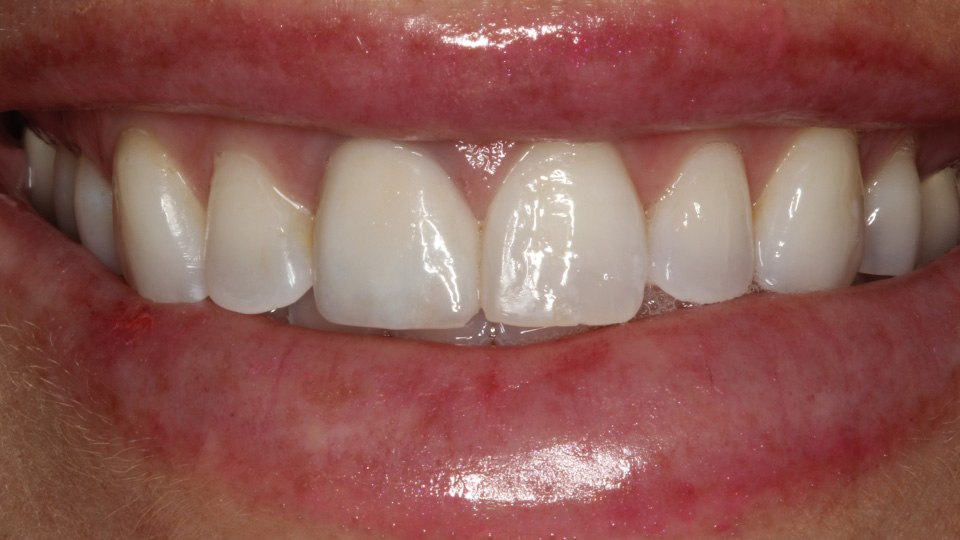 Correct your smile with porcelain veneers or crowns.