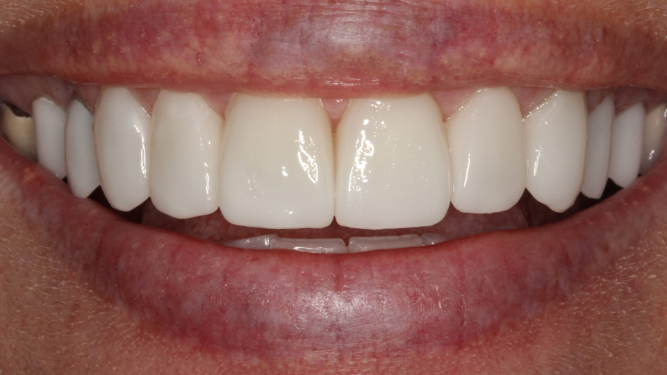 For straighter, whiter teeth, consider dental veneers.