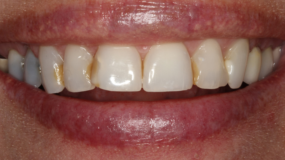 Call us for dental veneers.