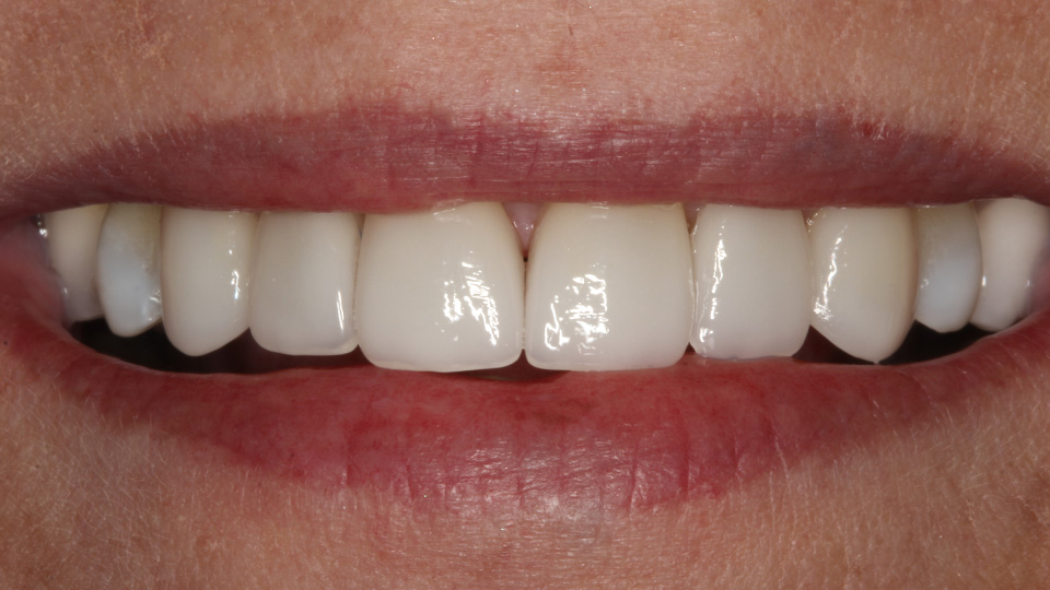 Dental veneers create beautiful results.