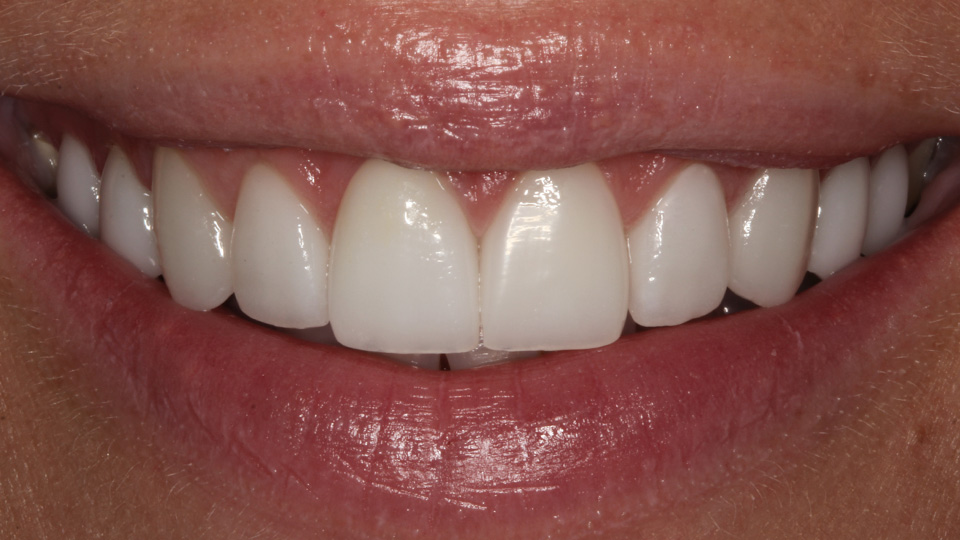 Consider veneers if you want a great smile.