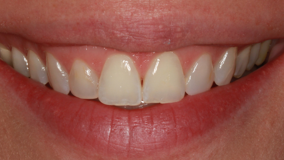 Whiten and perfect your smile with veneers.