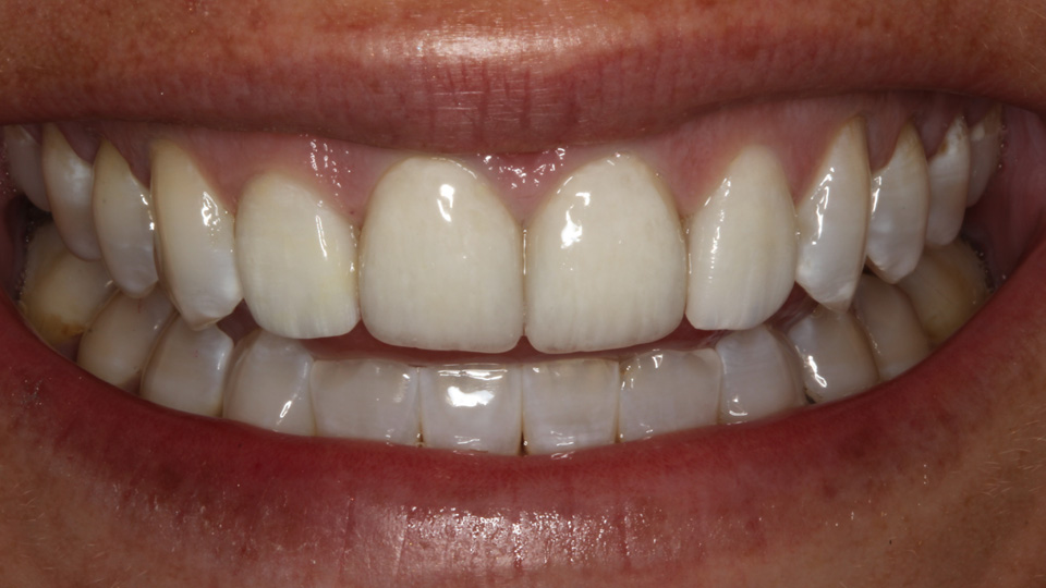 Straighter, whiter teeth can happen with veneers.