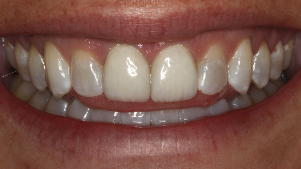 With cosmetic dentistry, teeth can be whiter and brighter.
