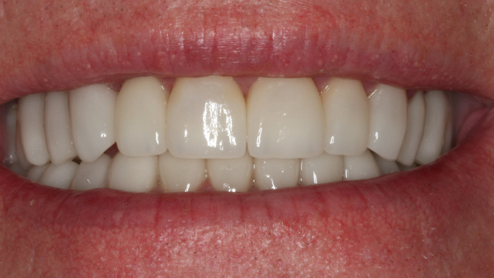 Straighten your smile with veneers.