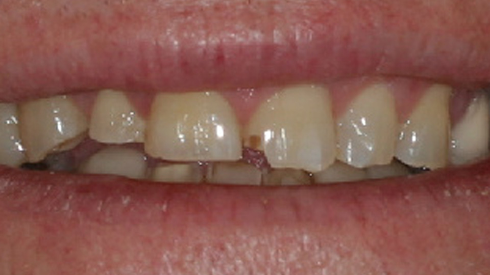 Try dental veneers for a bright smile.
