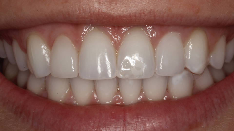 Restore your smile with porcelain veneers.