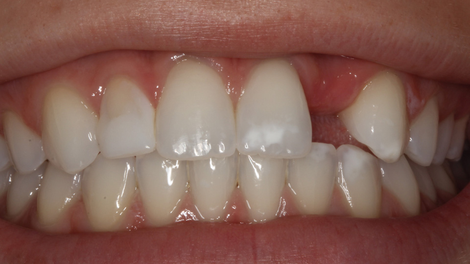 Improve your teeth with cosmetic dentistry.