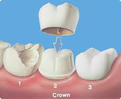 salt lake dental crown slc