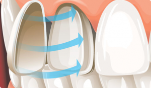 A dental veneer is applied to a natural tooth