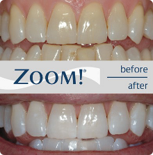 zoom teeth whitening slc