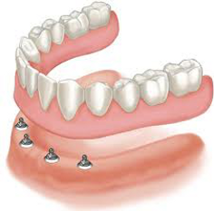 Bottom Denture Piece - Implant Supported Dentures For Holladay In Utah