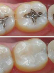 Patients Near Holladay Utah Can See The Difference - Traditional Dental Filling vs Tooth Colored Fillings